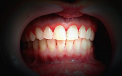 What To Do About Bleeding Gums: Gingivitis, Oral Hygiene, and Gum Health